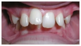 Upper Front Teeth Protrusion Photo